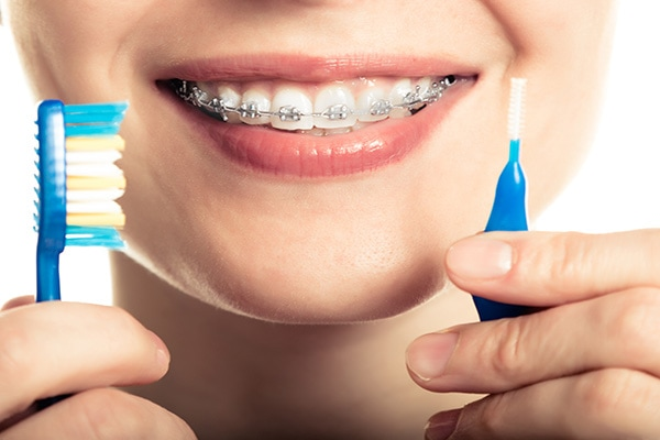 care for braces
