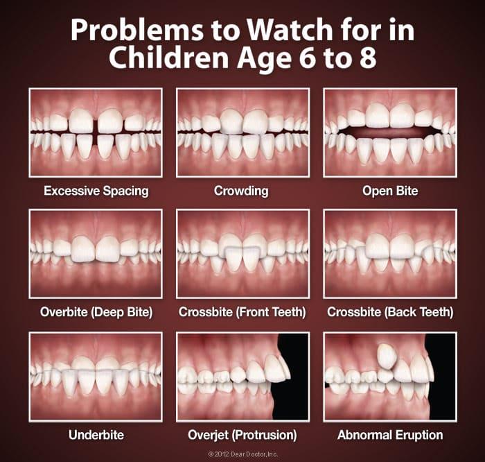 orthodontic-problems